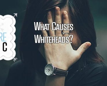 what causes whiteheads