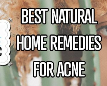 Best Natural Home Remedies For Acne