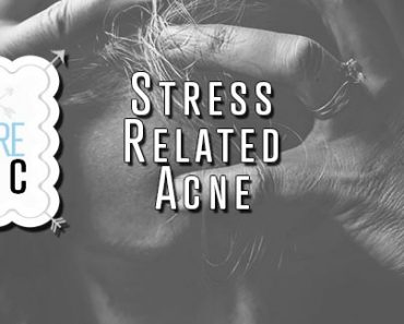 Stress Related Acne