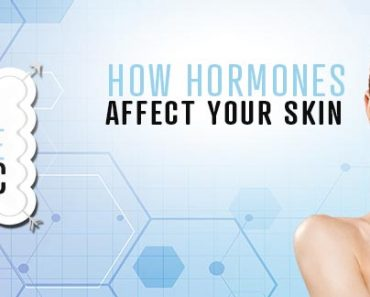 How Hormones Affect Your Skin